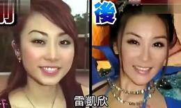 """薛芷伦整容失败 变脸如""""蛇精"""""""